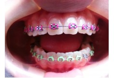 Centro en Ortopedia y Ortodoncia Dentoalveolar S.C.